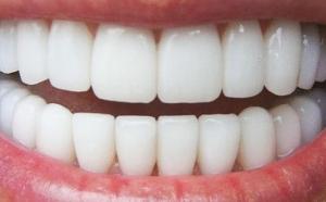 EcoDenta alebo krásny biely úsmev… ;)